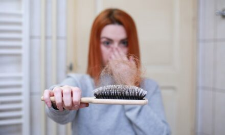 What Causes Hair Loss in Women? 9 Common Causes (and What to Do About It!)